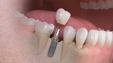 TarnoviaDent | Implant